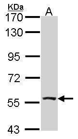 ALDH7A1 Antibody (PA5-29974) in Western Blot