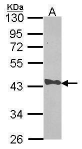 CAPG Antibody (PA5-29981) in Western Blot
