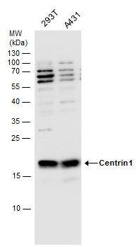 Centrin 1 Antibody (PA5-29986) in Western Blot