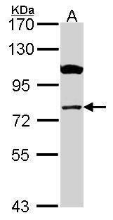 CPT1A Antibody (PA5-29995) in Western Blot
