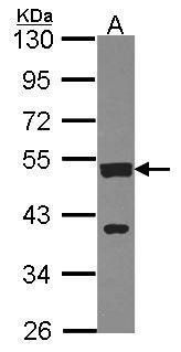 CSTF1 Antibody (PA5-30000) in Western Blot