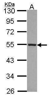 CYP4A11 Antibody (PA5-30004) in Western Blot