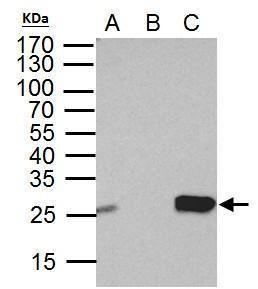 DTYMK Antibody (PA5-30010) in Immunoprecipitation
