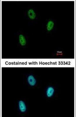 E2F6 Antibody (PA5-30011)