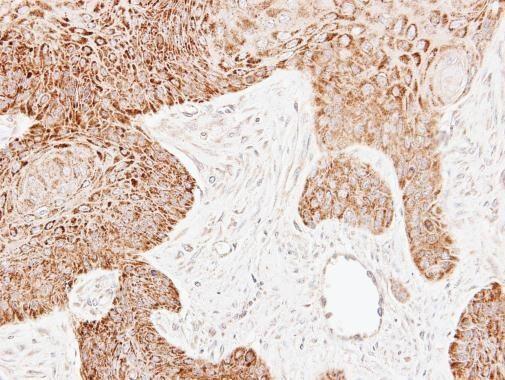 ECH1 Antibody (PA5-30012) in Immunohistochemistry (Paraffin)