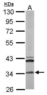 ECH1 Antibody (PA5-30012) in Western Blot