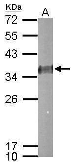 ESD Antibody (PA5-30020) in Western Blot