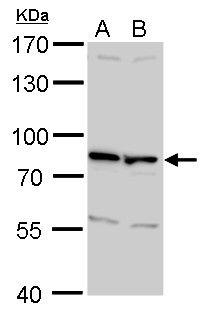 ETV5 Antibody (PA5-30023) in Western Blot