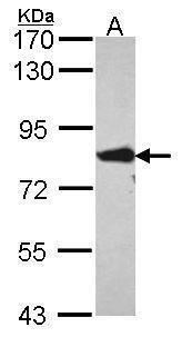 ACSL4 Antibody (PA5-30026) in Western Blot