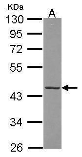 FAH Antibody (PA5-30027) in Western Blot