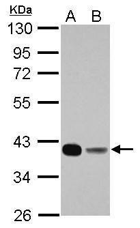 FBP1 Antibody (PA5-30028) in Western Blot