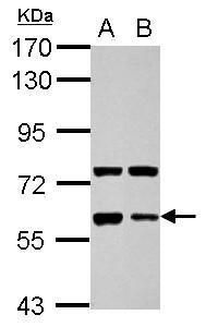 Glypican 5 Antibody (PA5-30029)