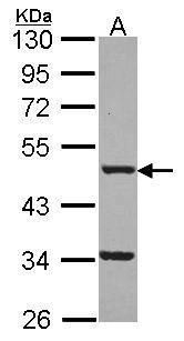 FNTB Antibody (PA5-30036) in Western Blot