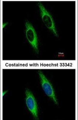 GART Antibody (PA5-30039) in Immunofluorescence