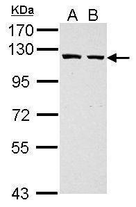 GART Antibody (PA5-30039) in Western Blot