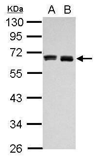 HAS3 Antibody (PA5-30056) in Western Blot