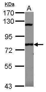 IPR1 Antibody (PA5-30070)