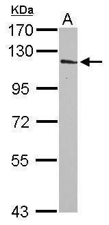 INPP4A Antibody (PA5-30072) in Western Blot