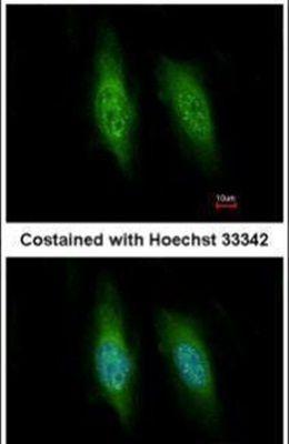 KIFC3 Antibody (PA5-30074) in Immunofluorescence