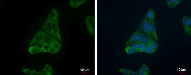 FADS1 Antibody (PA5-30080) in Immunofluorescence