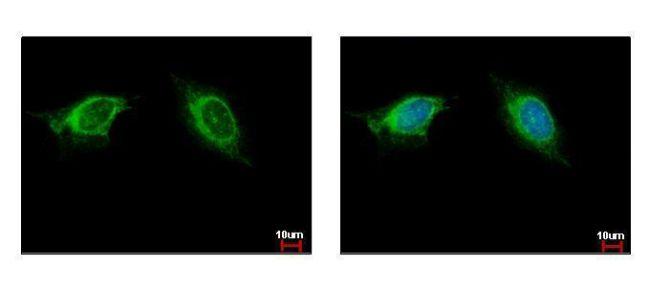 NAGLU Antibody (PA5-30097) in Immunofluorescence