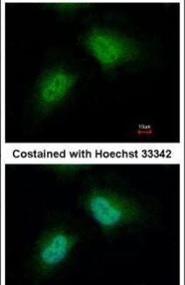 PCBP2 Antibody (PA5-30116)