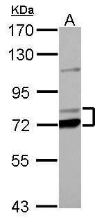 PCCA Antibody (PA5-30117) in Western Blot