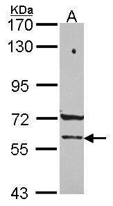 PCCB Antibody (PA5-30118) in Western Blot