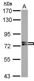 PPEF1 Antibody (PA5-30126) in Western Blot