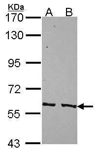 PPP3CC Antibody (PA5-30129) in Western Blot