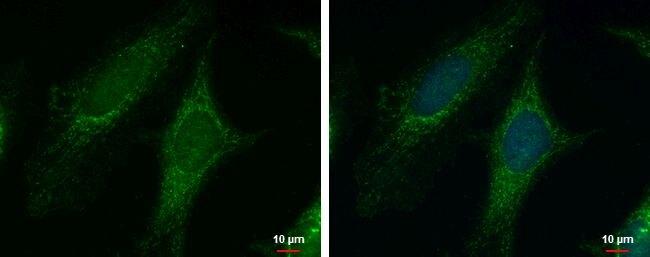PYCR1 Antibody (PA5-30141)