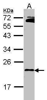 RAP2B Antibody (PA5-30144) in Western Blot