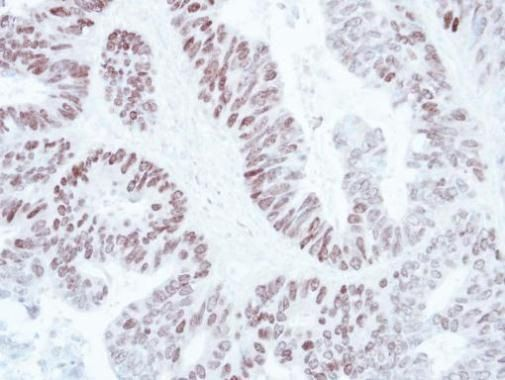 SATB1 Antibody (PA5-30163) in Immunohistochemistry (Paraffin)