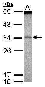 SCML1 Antibody (PA5-30165)