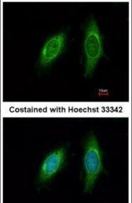 SGTA Antibody (PA5-30171) in Immunofluorescence