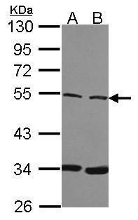 BAF57 Antibody (PA5-30176) in Western Blot