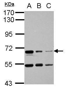 HAI-1 Antibody (PA5-30179) in Western Blot