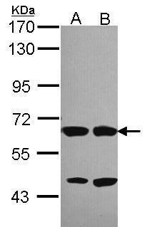 Unc18-2 Antibody (PA5-30185) in Western Blot
