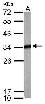 TPM4 Antibody (PA5-30194) in Western Blot
