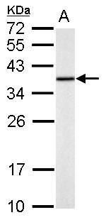 TST Antibody (PA5-30196) in Western Blot