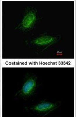 UMPS Antibody (PA5-30203)