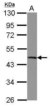 UQCRC2 Antibody (PA5-30204) in Western Blot
