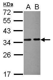 VDAC2 Antibody (PA5-30205) in Western Blot
