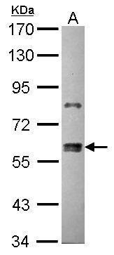 ZNF133 Antibody (PA5-30212) in Western Blot