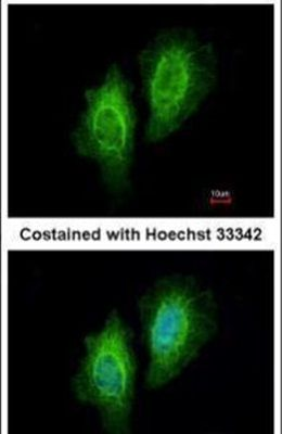 eIF4A1 Antibody (PA5-30216) in Immunofluorescence