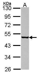 eIF4A1 Antibody (PA5-30216) in Western Blot