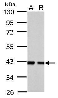 Aldolase B Antibody (PA5-30218) in Western Blot