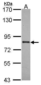 ABCB7 Antibody (PA5-30219) in Western Blot