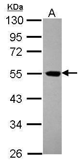 eIF5 Antibody (PA5-30223) in Western Blot