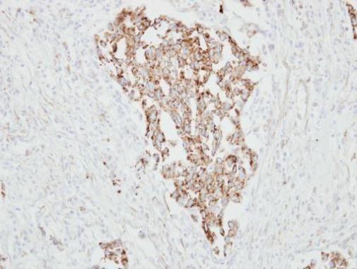 RARRES1 Antibody (PA5-30227) in Immunohistochemistry (Paraffin)
